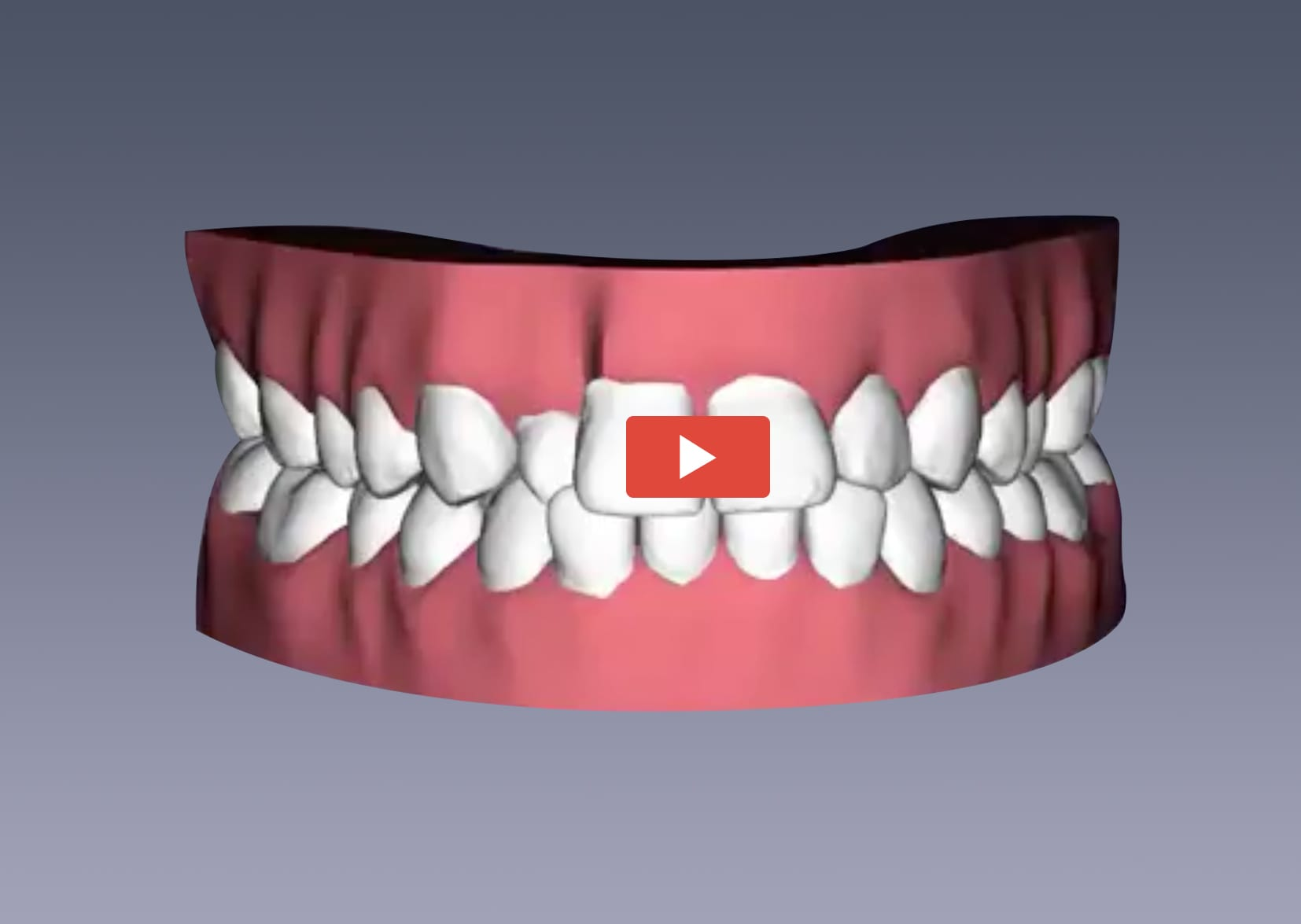 Teeth Straightening with Clear Aligners | EZ SMILE